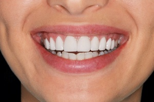 Close-up of healthy smile with no gum recession