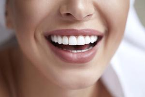 close up person smiling with straight white teeth