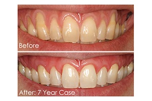 Smile before and after Chao pinhole surgery