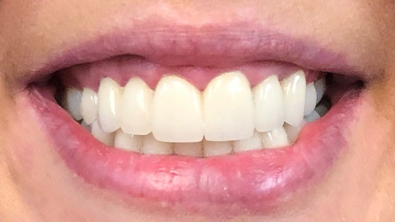 Closeup of flawless smile after cosmetic treatment