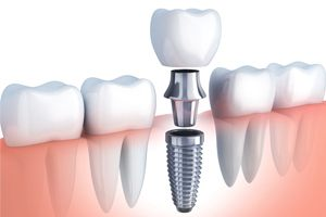 components of single implant