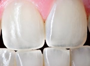 black gaps between teeth