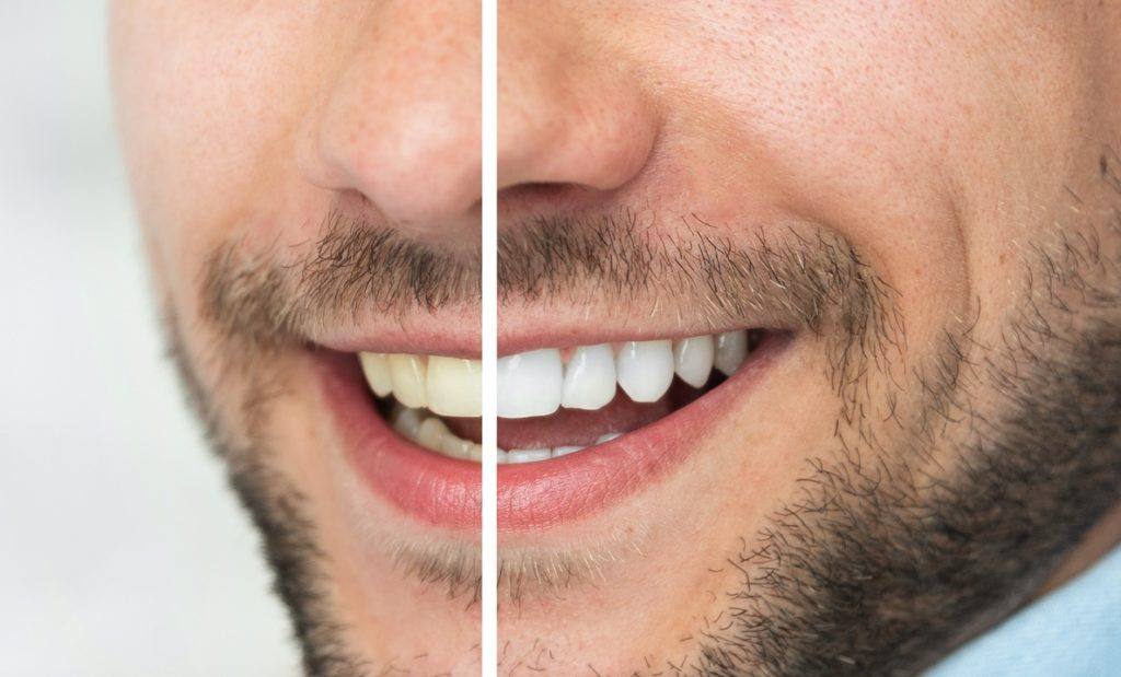 Man before and after teeth whitening treatment from dentist in